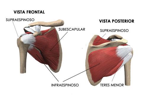 Tendinitis del supraespinoso y manguito de los rotadores